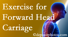 Baton Rouge  chiropractic treatment of forward head carriage is two-fold: manipulation and exercise.
