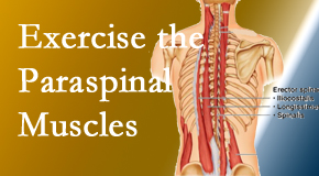 Spine & Sports Rehab Center explains the importance of paraspinal muscles and their strength for Baton Rouge  back pain relief.