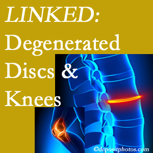 Degenerated discs and degenerated knees are not such unlikely companions. They are seen to be related. Baton Rouge  patients with a loss of disc height due to disc degeneration often also have knee pain related to degeneration.