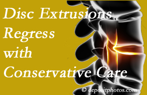Baton Rouge  chiropractic care of extruded discs may benefit regression of them and improve your quality of life.